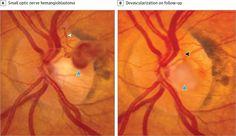 Spontaneous Devascularization and Detachment of Optic Nerve Hemangioblastoma in a Patient With Von Hippel-Lindau Disease  AMA Ophthalmol. 2016;134(9):e161119. doi:10.1001/jamaophthalmol.2016.1119