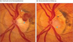 Spontaneous Devascularization and Detachment of Optic Nerve Hemangioblastoma in a Patient With Von Hippel-Lindau Disease  AMA Ophthalmol. 2016;134(9):e161119. doi:10.1001/jamaophthalmol.2016.1119