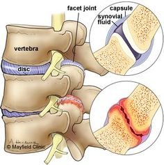 Facet joint syndrome is an arthritis-like condition of the spine that can be a significant source of back and neck pain. #NotJustAPainInTheNeck!