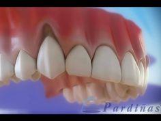 ¿ENCÍAS RETRAÍDAS? Sepa como solucionarlas | Directorio Odontológico