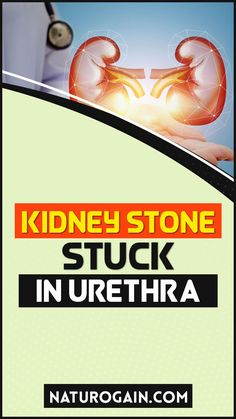 If the kidney stone is stuck in the urethra, take Kid Clear capsules to reverse renal calculi symptoms without surgery at home. Other than this, Kid Clear capsules possess herbs that have strong anti-bacterial properties. These herbs prevent infections and stone formation. #kidneystones #kidneystone #kidneyhealth Natural Treatments, Natural Remedies, Kidney Stones Symptoms, Improve Kidney Function, Kidney Health, Surgery, Herbalism, Health Care