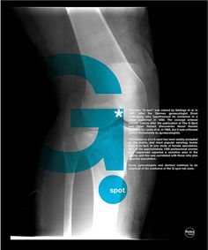 Repost about the inexitence of the G spot / point G / X ray serie #1 (orignal post on 23 may 2009) by Rétrofuturs (Hulk4598) / Stéphane Massa-Bidal, via Flickr
