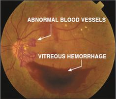 Recent studies have shown that only ~16% of patients who have had diabetes for over 15 years show proliferative diabetic retinopathy (PDR) changes on exam. Though PDR only accounts for a small % of cases, it is responsible for a majority of blindness caused by diabetes. PDR is characterized by a growth of abnormal blood vessels within the retina as a result of ischemia. These abnormal blood vessels can leak profusely, causing serious damage to the retina and hemorrhaging into the vitreous