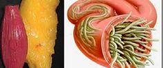 Com estes 2 ingredientes, você vai eliminar vermes e depósitos de gordura do corpo sem sofrimento! - http://comosefaz.eu/com-estes-2-ingredientes-voce-vai-eliminar-vermes-e-depositos-de-gordura-do-corpo-sem-sofrimento/
