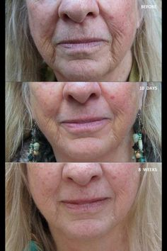 Narium Ad results after 8 wks ..... Amazing!!! www.suzannegates.nerium.com