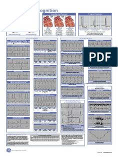 Cardiac Dysrhythmias | Electrocardiography | Cardiovascular System Sinus Tachycardia, Ventricular Tachycardia, Atrial Fibrillation, Heart Blood Flow, Atrial Flutter, Qrs Complex