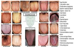 Chinese Medicine Tongue   chinese medicine two main aspects are considered in tongue diagnosis