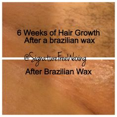 Before And After Full Brazilian Wax