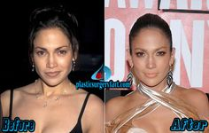 Jennifer Lopez Plastic Surgery Before and After | http://plasticsurgeryfact.com/jennifer-lopez-plastic-surgery-before-and-after-photos/