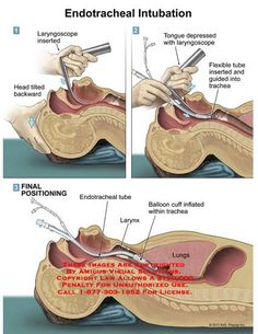 Endotracheal intubation Source by stewipanzon Related posts: No related posts. Surgical Nursing, Surgical Tech, Nursing School Notes, Medical School, Respiratory Therapy, Medical Anatomy, Emergency Medicine, Medical Field, Medical Science