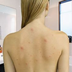 Causes and Treatments Of Back Acne, Chest Acne, etc