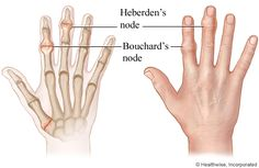 Illustration copyright 2003 Nucleus Communications, Inc. All rights reserved. http://www.nucleusinc.comBony bumps on the finger joint closest to the fingernail are called Heberden's nodes. Bony bumps on the middle joint of the finger are known as Bouchard's nodes. ...