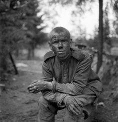 Portrait of a wounded Soviet Army soldier