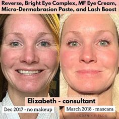 Amazing results seen in 3 months using Rodan and Fields Reverse Regimen. Say goodbye to dull, uneven complexion, expression lines and Crowe's feet, fine lines and wrinkles. Smooth out your complexion Best Anti Aging, Anti Aging Skin Care, Rodan And Fields Consultant, Independent Consultant, Rodan And Fields Reverse, Aging Backwards, Uneven Skin Tone, Skin Care Regimen, Healthy Skin