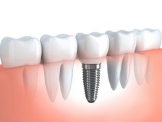 Dental Implant- Few Things that you should know