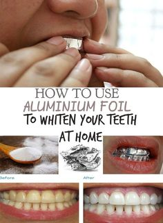 Home teeth whitening helps you a lot when you urgently need to get a beautiful smile. How To Whiten Your Teeth At Home With Aluminum Foil! (Bicarbonato de sódio, papel alumínio e dentifrício) Teeth Whitening Methods, Charcoal Teeth Whitening, Natural Teeth Whitening, Beauty Care, Diy Beauty, Beauty Hacks, Teeth Care, Healthy Teeth, Fit Bodies