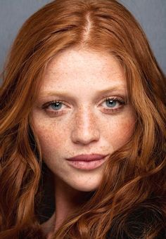 redhair & freckles -- we all know freckles are sun damage.