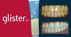 ** DIRETO DOS EUA *** Ajuda a clarear sem danificar o esmalte dos dentes, pois não é abrasivo! Diminui expressivamente e até elimina sensibilidade, placa, tártaro, gengivite, aftas, retrações gengivais, etc. Sua exclusiva fórmula Reminact, possui dióxido de titanium, que ajuda na remineralização do esmalte dos dentes, deixando-os mais fortes e resistentes. Tubo de 60g - 15,00 com frete Tubo de 200g - 30,00 com frete
