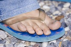 Getting rid of toenail fungus
