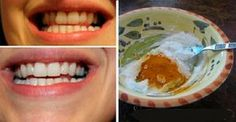 Este incrível clareameamento dental fortalece os dentes e deixa-os com um branco maravilhoso   Cura pela Natureza
