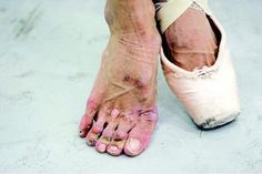 A ballerina's feet after years of point shoes : WTF