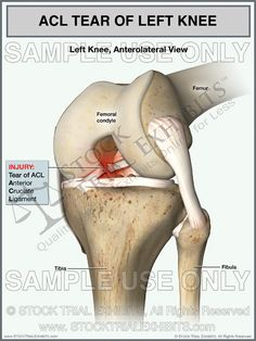 ACL Tear of the Left Knee stock trial exhibit - stock exhibit - medical exhibit - legal illustration