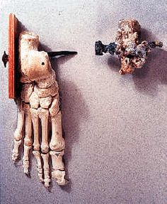 Anthropology | Archaeology | The History of Crucifixion