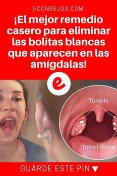 Bolitas blancas en la garganta   ¡El mejor remedio casero para eliminar las bolitas blancas que aparecen en las amígdalas!   Receta simple, económica y muy eficaz ↓ ↓ ↓