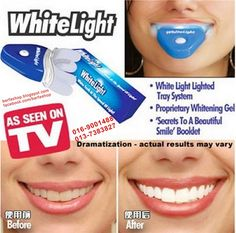 WhiteLight_Whiten_Teeth_Fast_before_after_Berfashop  BS1010e_care_White Light Teeth Whitening System Whiter Teeth RM45_0169001488  The original Whitelight Tooth Whitening System is a revolutionary new product that uses the same light technology found teeth bleaching