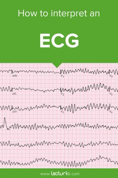Learn the seven steps to interpret an ECG with help of an analysis algorithm and test your knowledge by taking the ECG quiz. Heart rate ✓, heart rhythm ✓, electrical heart axis ✓, the pr interval ✓, repolarization ✓. Read more here! Ekg Interpretation, Cardiac Nursing, Pharmacology Nursing, Cardiac Rhythms, Nursing School Notes, Respiratory Therapy, Cardiology, Medical Information, Salud