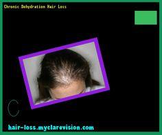 Chronic Dehydration Hair Loss 070502 - Hair Loss Cure!