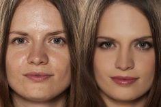 Oily Hair Remedies, Oily Skin Remedy, Oily Skin Care, Beauty Regime, Homemade Skin Care, Fair Skin, Natural Skin Care, Makati, Beauty Hacks