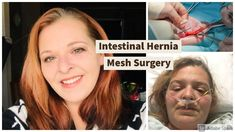 Intestinal Hernia Mesh Surgery Update (VDA) Youtube Live, I Am Sorry, Surgery, Mesh, Really Sorry, Fishnet, Tulle
