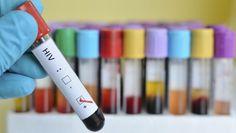 Chez les personnes infectées par un type précis de VIH, la maladie ne progresse que rarement, même sans traitement. Des chercheurs français ont découvert que ces patients disposaient de cellules immunitaires particulièrement efficaces pour éliminer les cellules infectées par le virus.