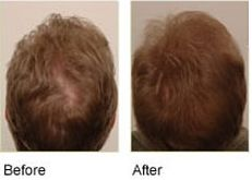 """""""I am absolutely amazed at the results of your product !! I am the world's biggest sceptic and only ordered Procerin out of sheer desperation. After just two weeks I noticed little to no hair in the tub after shampooing. Two months later the bald spot in the back of my head has filled in almost completely!! And...I'm 58 years old !! Great product...I'm sold for life."""" - """"John N, Nashville, TN"""""""
