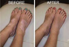 How can I treat Vitiligo?