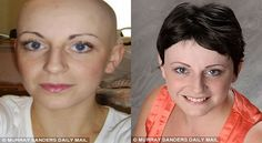 UNBELIEVABLE: Bald Woman Regrows Hair By Accident! #hairloss