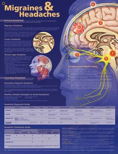 Migraines and Headaches anatomy poster illustrates three main types of headaches and the steps in the pathway of a migraine attack.