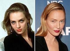 #saturday #transformation #fashionblogger  #plasticsurgery #beforeandafter #celebrity #style #fashion #surgery #skincare #teeth #botox#hairstyle #hair #makeupartist #makeup #love #instagram #famous #actress #model #instagood #picoftheday #umathurman #killbill #pulpfiction #kyliecosmetics http://tipsrazzi.com/ipost/1509025200811954572/?code=BTxImzLglGM