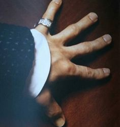 Prince's hand. His fingers became uniquely shaped like that from hours of practicing and playing the guitar.