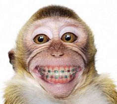 This monkey! Community Post: Animals With Braces That Will Make You Smile Smiling Animals, Happy Animals, Animals And Pets, Funny Animals, Cute Animals, Laughing Animals, Smiling Faces, Wild Animals, Primates