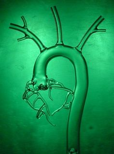 Glass models of the aorta can be altered to mimic nearly any anatomical configuration. The standard model sold includes the arch, brachiocephalic trunk, common coratid arteries, subclavian arteries, descending aorta, celiac trunk, splenic and renal arteries and ends at the iliac arteries.