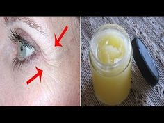 She Removed All Wrinkles Using This Homemade Cream Only For 1 Week (Recipe) ! - YouTube