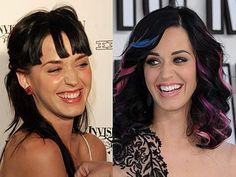The smile makeover of Katy Perry . She did it so what are you waiting for ? Celebrity Teeth, Celebrity Smiles, Teeth Makeover, Smile Makeover, Katy Perry, Veneers Teeth, Dental Veneers, Cheryl Cole, Demi Moore