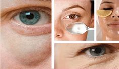 Eye bags or circles are a clear sign of tiredness, stress, and fatigue. Here are some important recommendations on how to remove eye bags at home. Beauty Box, Beauty Care, Diy Beauty, Beauty Makeup, Eye Makeup, Beauty Hacks, Makeup Tips, Eye Tricks, Dark Eye Circles