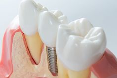 Dentist in Burnaby - HighGate Dental Clinic in Burnaby, B. A dentist near you, providing various dental treatments. Our Dental office open Saturdays in Burnaby. Dental Implant Surgery, Implant Dentistry, Teeth Implants, Dental Surgery, Cosmetic Dentistry, San Diego, Tooth Extraction Healing, Dental Cosmetics, Dental Crowns
