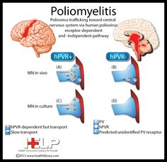 Poliomyelitis|For more behavior pins, follow @Connecting for Kids