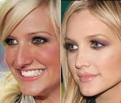 Celebrity Nose Jobs: Before and After | Celebrity nose jobs ... Nose Plastic Surgery, Plastic Surgery Procedures, Celebrity Plastic Surgery, Nose Surgery, Cosmetic Procedures, Ashlee Simpson, Derma Wax, Rhinoplasty Before And After, Rhinoplasty Surgery