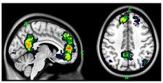 Brain Scans Clarify Borderline Personality Disorder – DailyHack