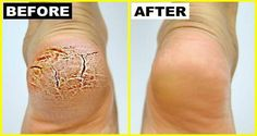 In this post we will tell you how can you cure cracked heels super fast and in just few days you heels will look beautiful again